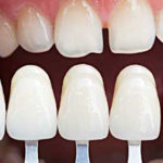 porcelain veneers grand rapids dentist