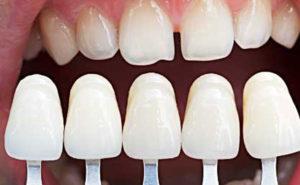 porcelain veneers grand rapids dentist